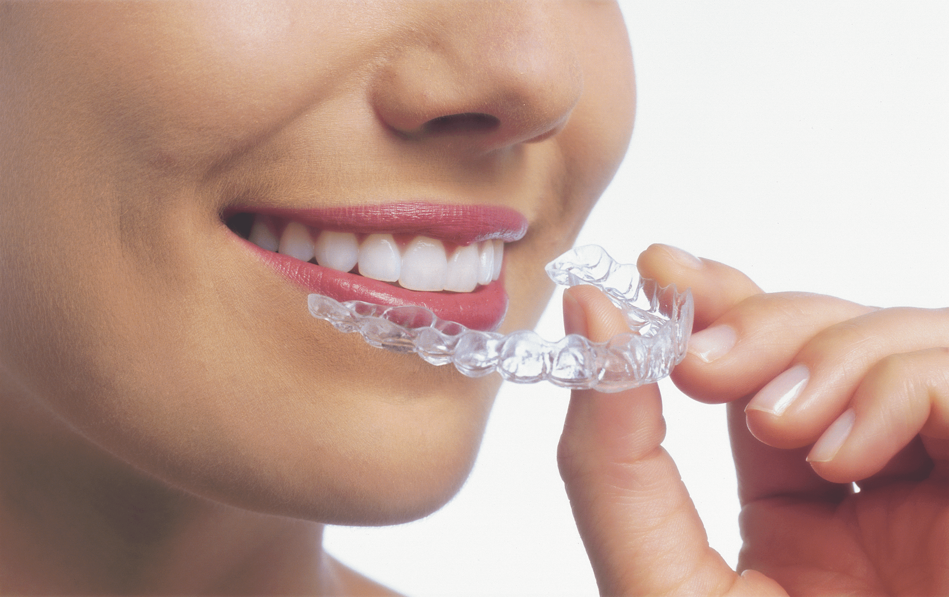 Top Invisalign Braces Provider in Key Biscayne