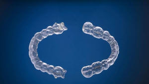 Invisalign Braces in Pembroke Pines