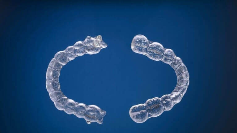 Invisalign 2 Pieces