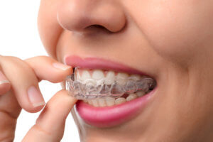 Doral's Most Favorite Invisalign Orthodontist