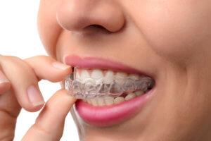 Doral's Most Favorite Invisalign Orthodontist