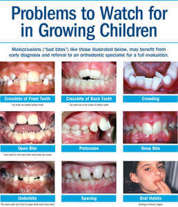 Early Orthodontic Treatment in West Miami