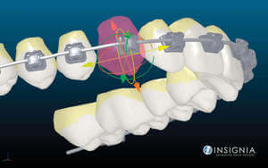 Insignia Advanced Smile Design Technology Creates Braces