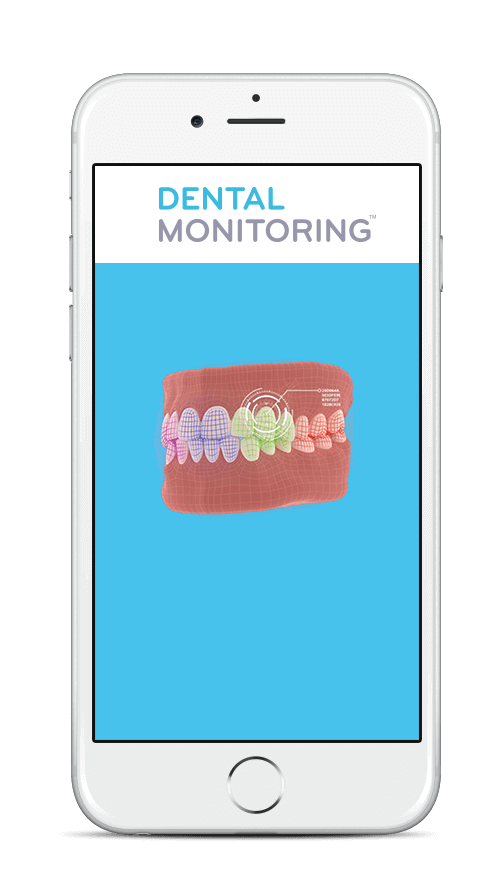 Dental Monitoring