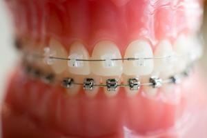 Orthodontic Precision
